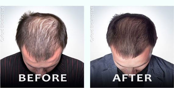 Propecia Is It The Right Hair Loss Treatment For You
