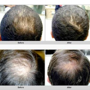 how to reduce excessive hair fall